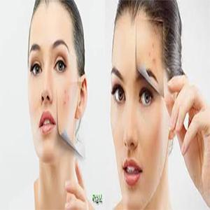 Photo of acne-sitetehran-01