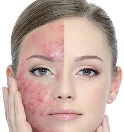 Image result for درمان سریع جای جوش
